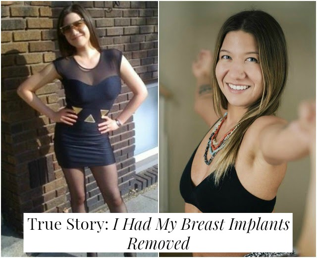 True Story: I had my breast implants removed // yesandyes.org
